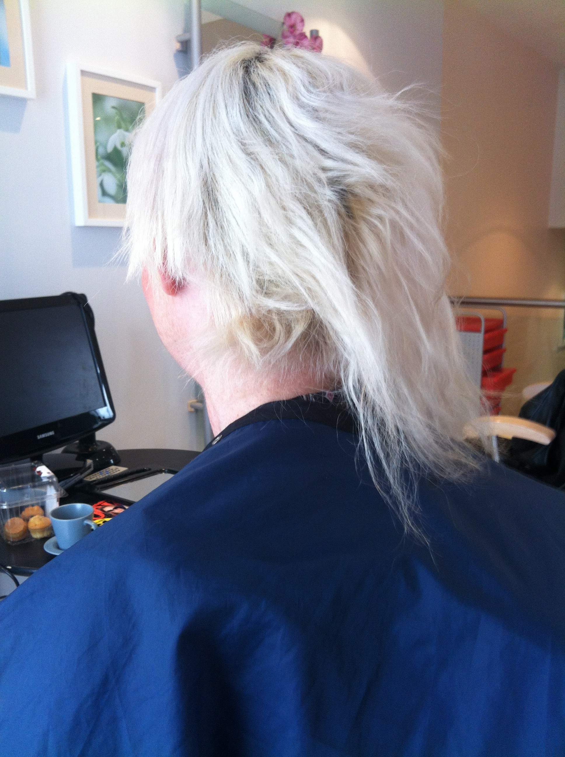 alopecia caused by steroids
